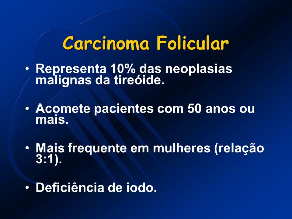 Carcinoma FolicularRepresenta 10% das neoplasias malignas da tireóide. Acomete pacientes com 50 anos ou mais.