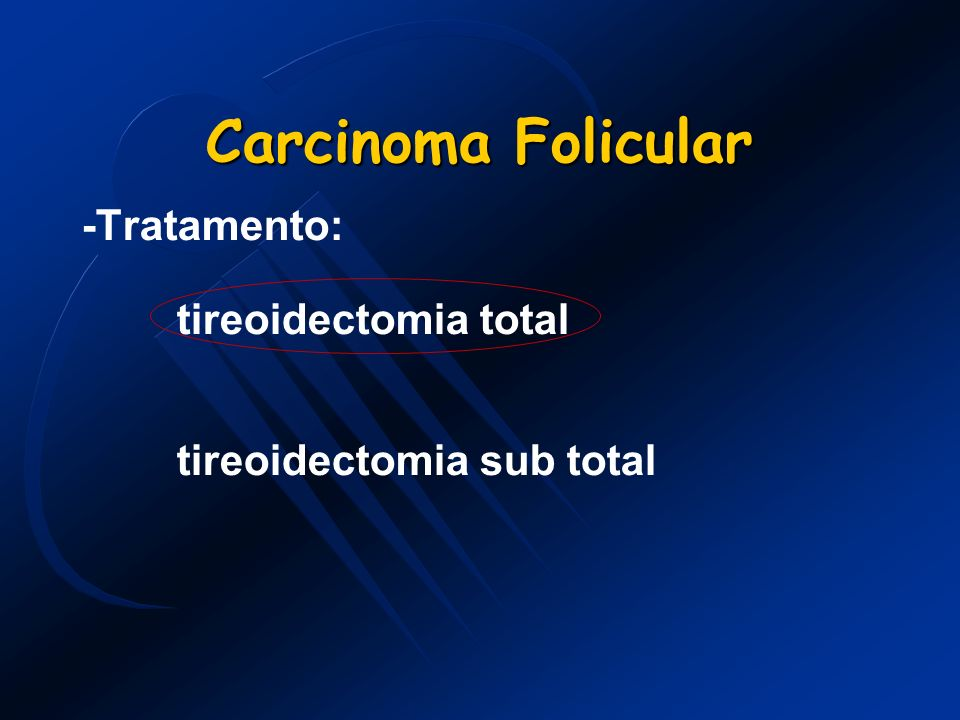 Carcinoma Folicular -Tratamento: tireoidectomia total tireoidectomia sub total