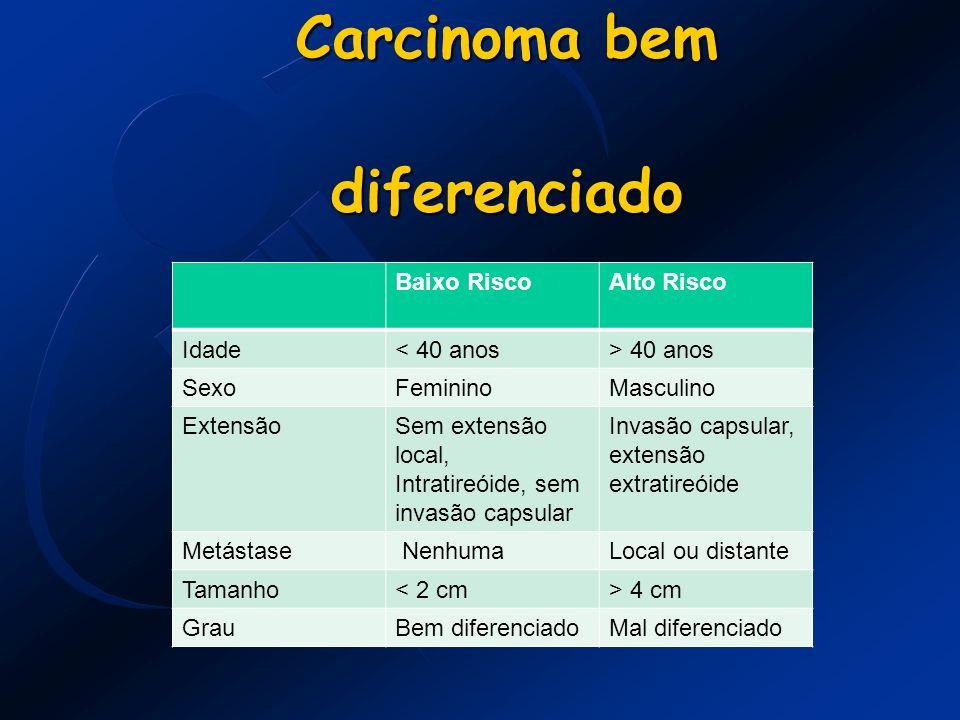 Carcinoma bem diferenciado