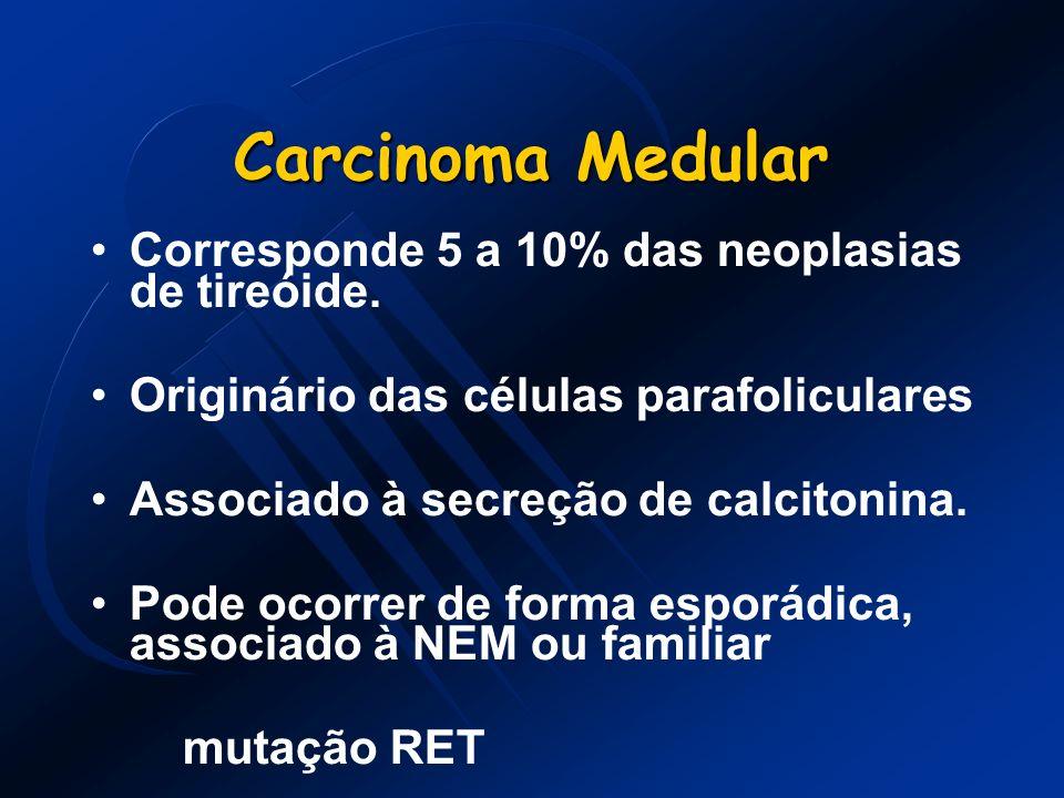 Carcinoma Medular Corresponde 5 a 10% das neoplasias de tireóide.