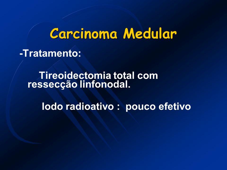 Carcinoma Medular -Tratamento: