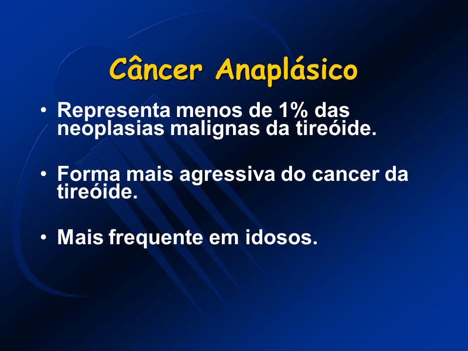 Câncer Anaplásico Representa menos de 1% das neoplasias malignas da tireóide. Forma mais agressiva do cancer da tireóide.