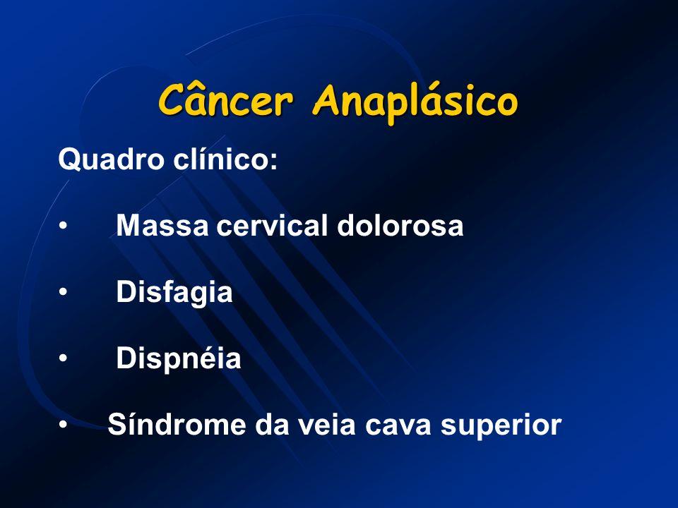 Câncer Anaplásico Quadro clínico: Massa cervical dolorosa Disfagia