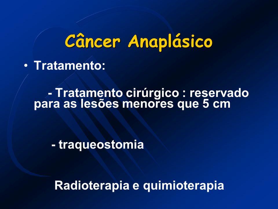 Câncer Anaplásico Tratamento:
