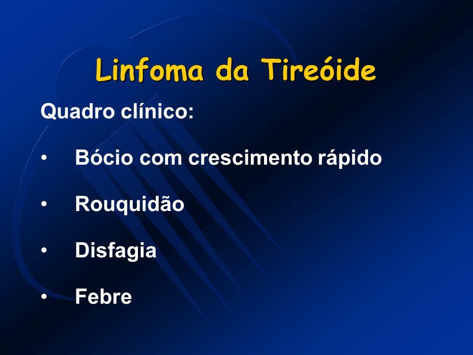 Linfoma da Tireóide Quadro clínico: Bócio com crescimento rápido