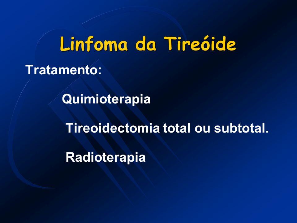 Linfoma da Tireóide Tratamento: Quimioterapia