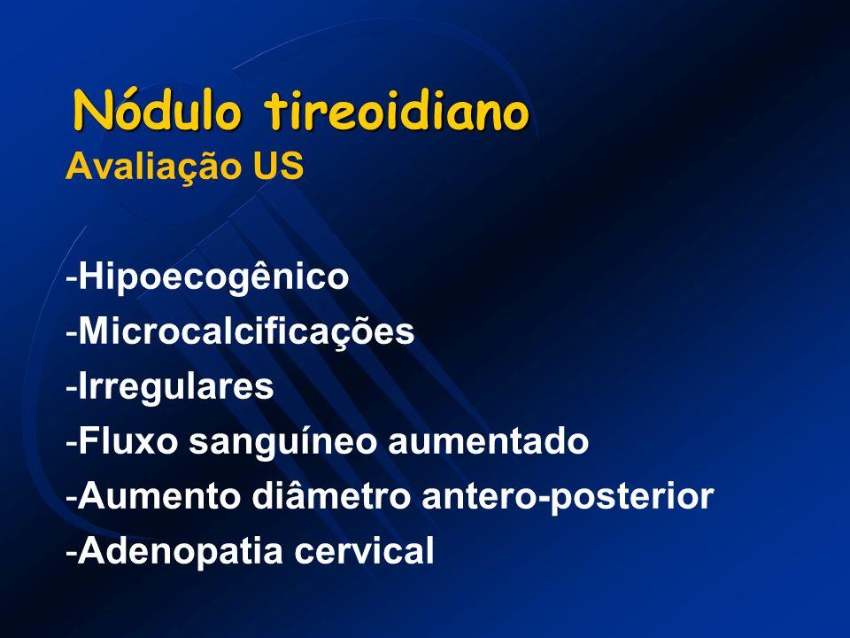 Nódulo tireoidiano Avaliação US Hipoecogênico Microcalcificações