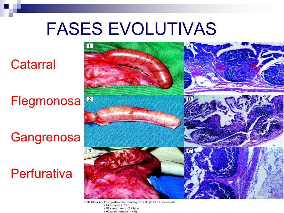 FASES EVOLUTIVAS Catarral Flegmonosa Gangrenosa Perfurativa