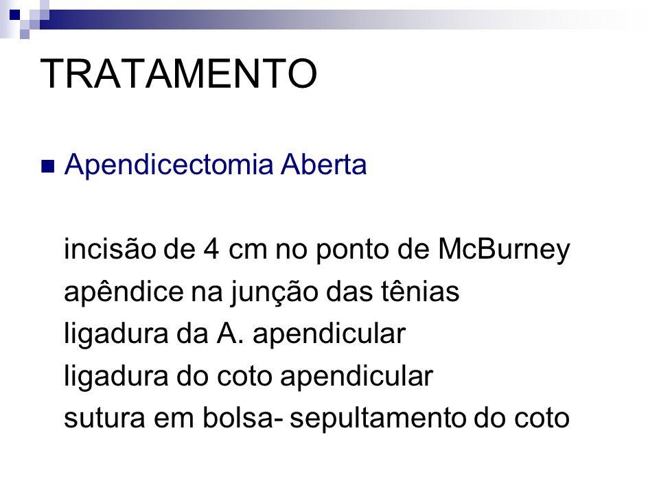 TRATAMENTO Apendicectomia Aberta incisão de 4 cm no ponto de McBurney