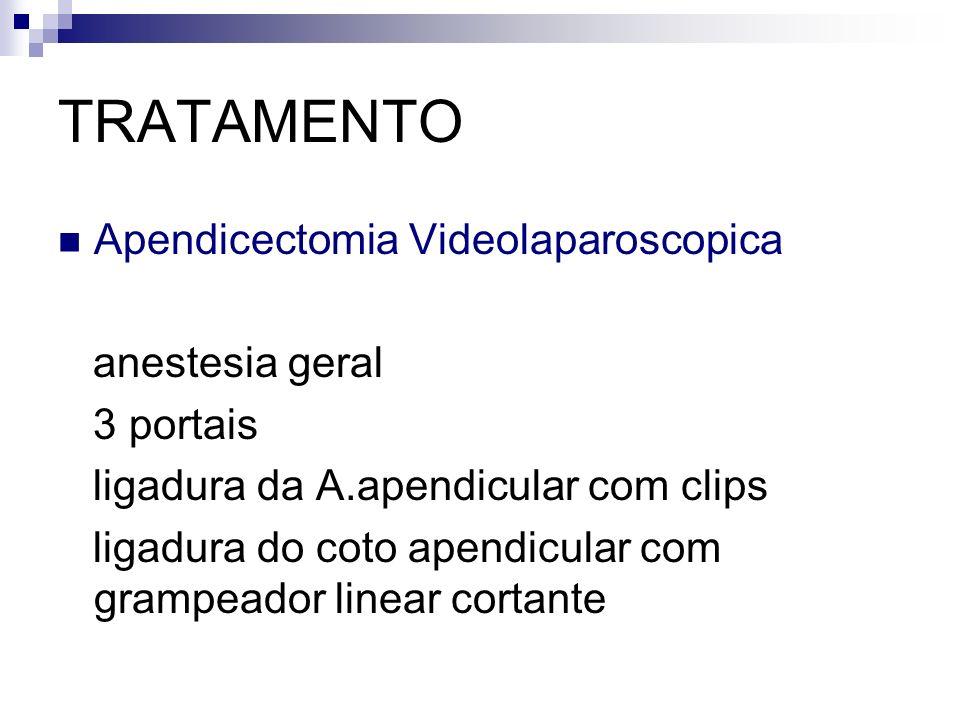 TRATAMENTO Apendicectomia Videolaparoscopica anestesia geral 3 portais