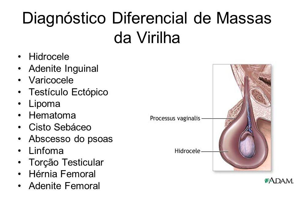 Diagnóstico Diferencial de Massas da Virilha