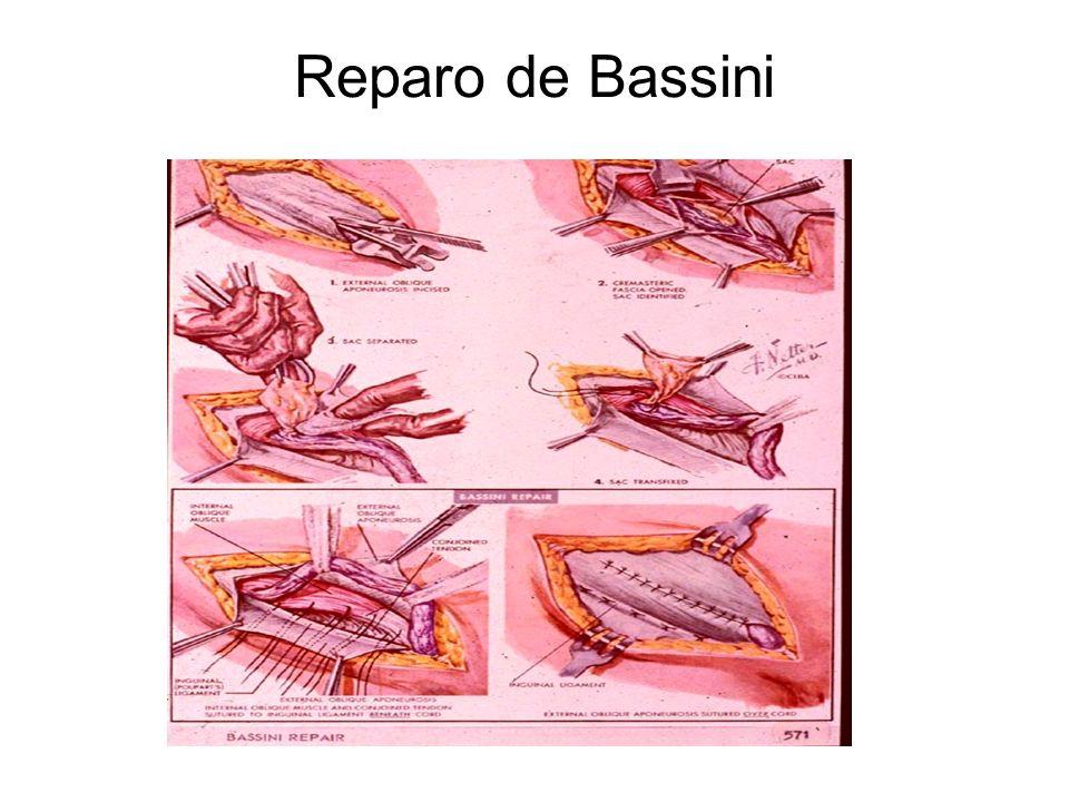 Reparo de Bassini