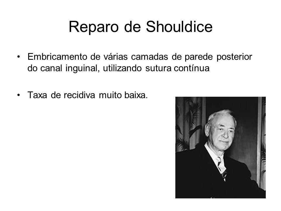 Reparo de Shouldice Embricamento de várias camadas de parede posterior do canal inguinal, utilizando sutura contínua.