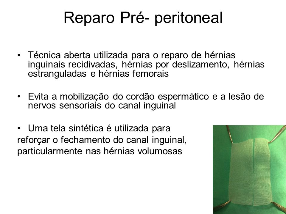 Reparo Pré- peritoneal