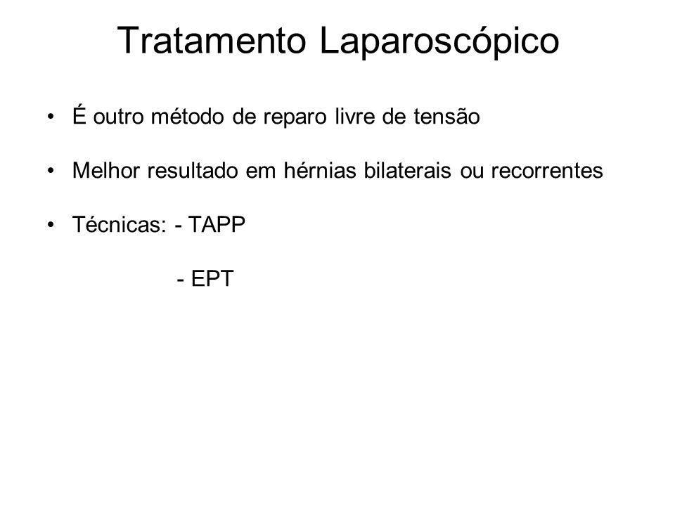 Tratamento Laparoscópico