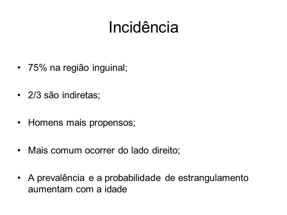 Incidência 75% na região inguinal; 2/3 são indiretas;