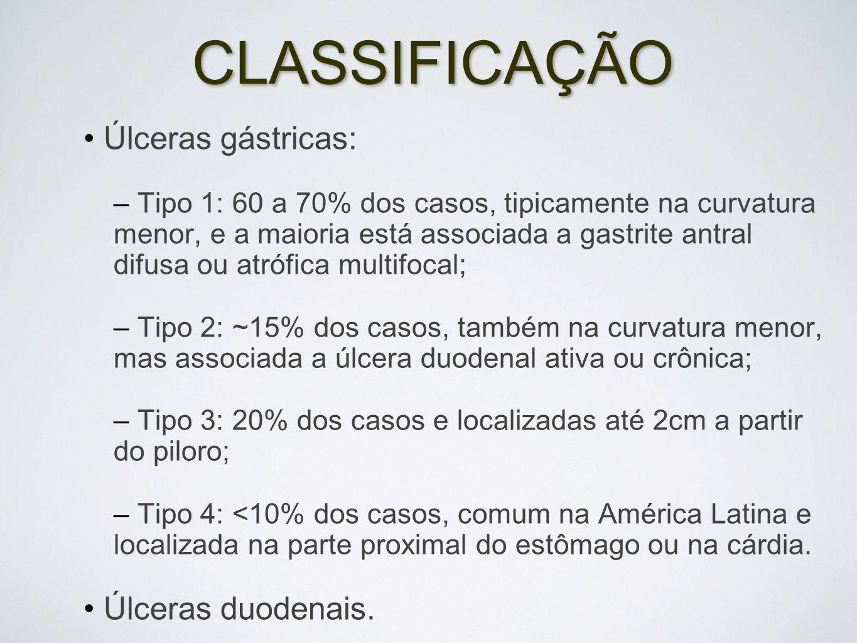 CLASSIFICAÇÃO Úlceras gástricas: Úlceras duodenais.