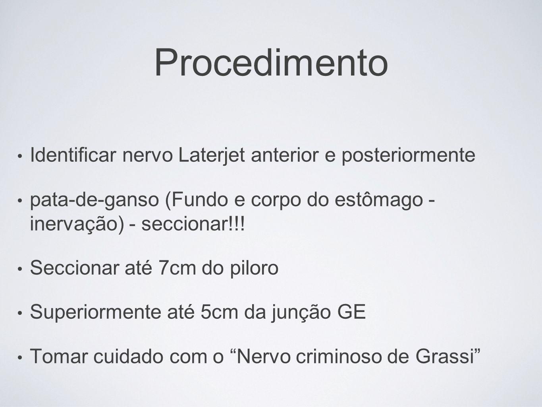 Procedimento Identificar nervo Laterjet anterior e posteriormente