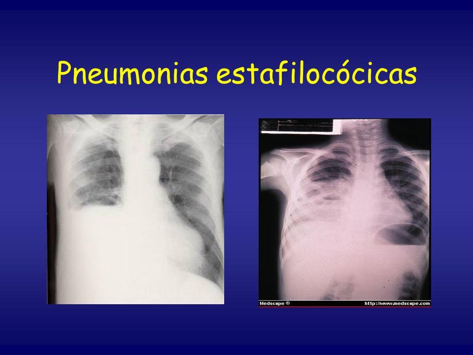 Pneumonias estafilocócicas