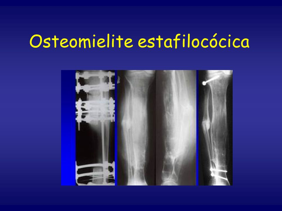 Osteomielite estafilocócica