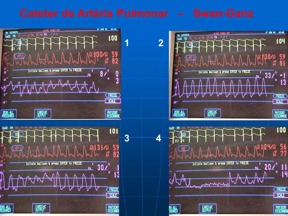 Cateter de Artéria Pulmonar – Swan-Ganz