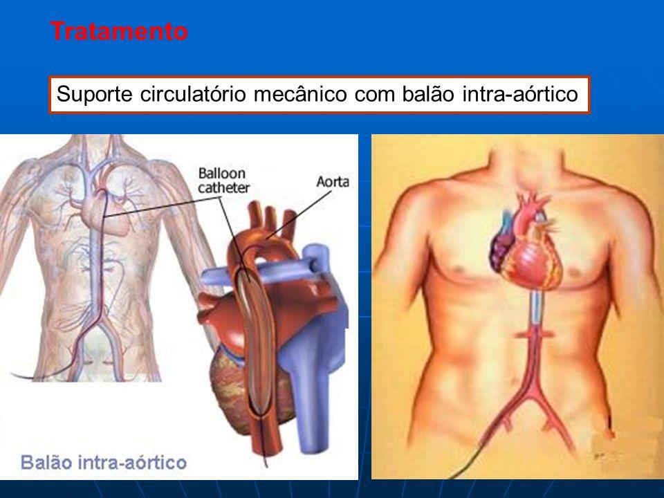 Tratamento Suporte circulatório mecânico com balão intra-aórtico
