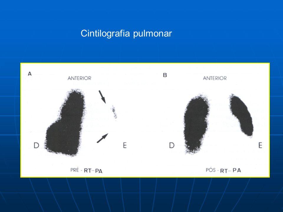 Cintilografia pulmonar