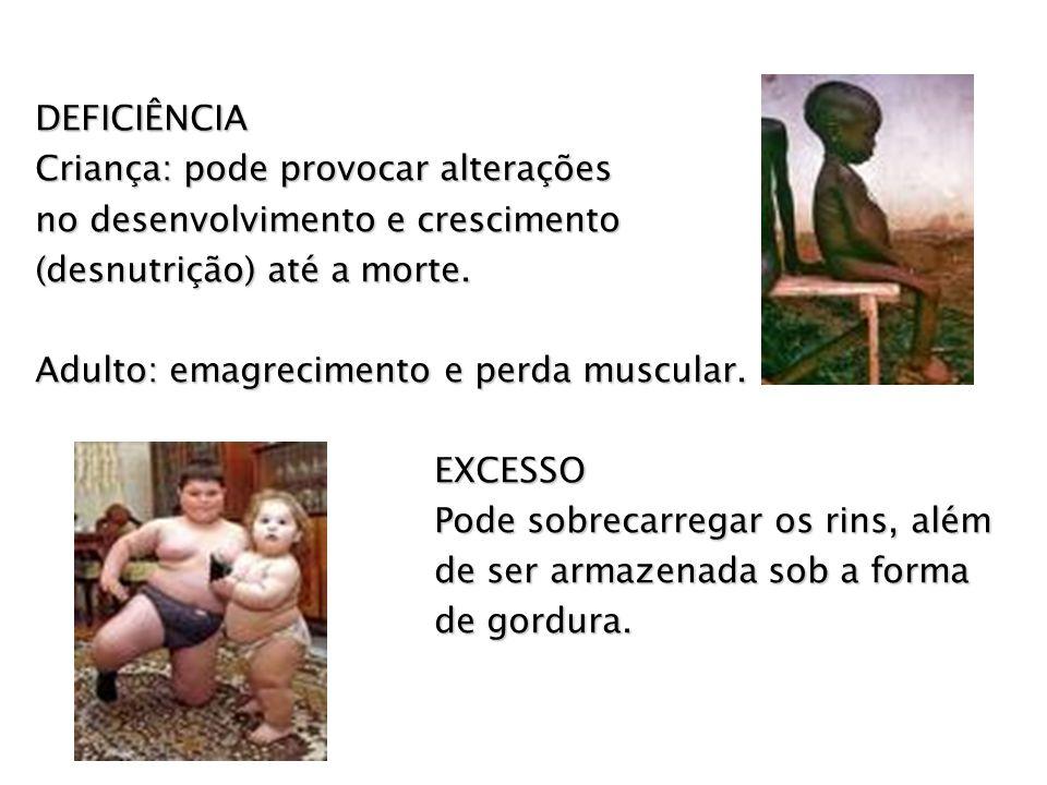 DEFICIÊNCIA Criança: pode provocar alterações. no desenvolvimento e crescimento. (desnutrição) até a morte.