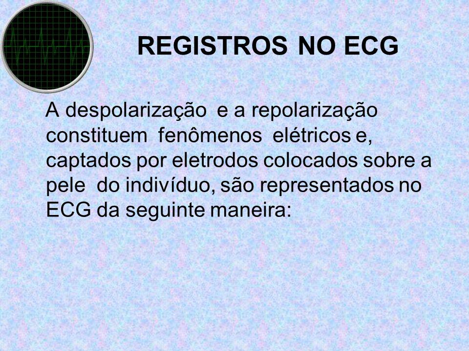 REGISTROS NO ECG
