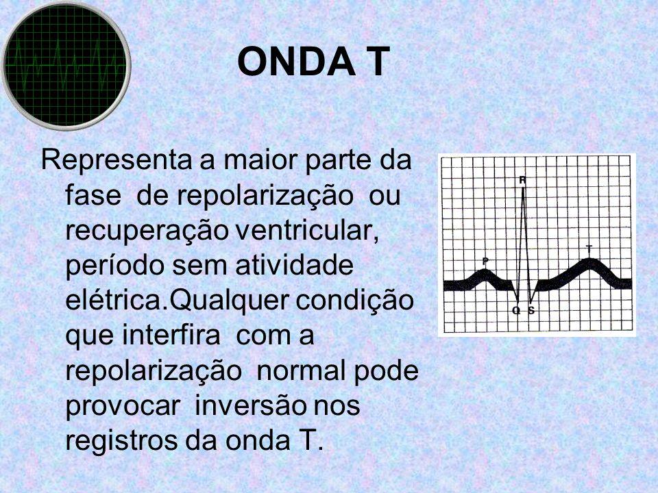 ONDA T