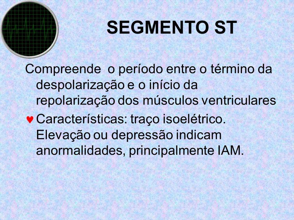 SEGMENTO ST Compreende o período entre o término da despolarização e o início da repolarização dos músculos ventriculares.
