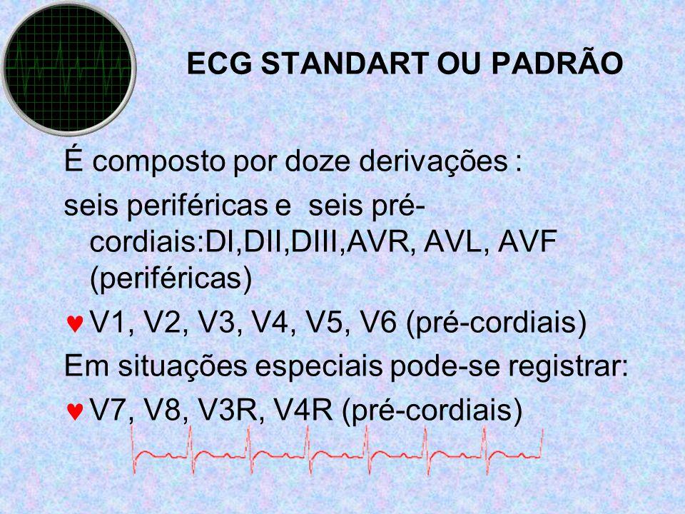 ECG STANDART OU PADRÃO É composto por doze derivações : seis periféricas e seis pré-cordiais:DI,DII,DIII,AVR, AVL, AVF (periféricas)