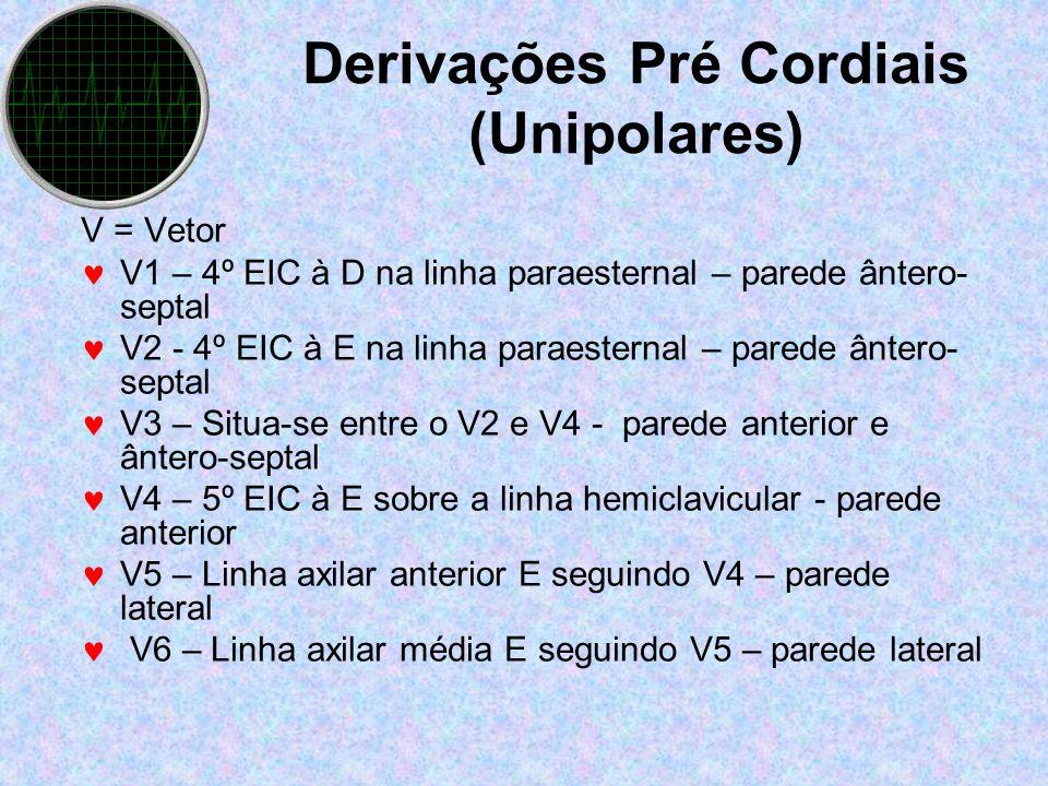 Derivações Pré Cordiais (Unipolares)