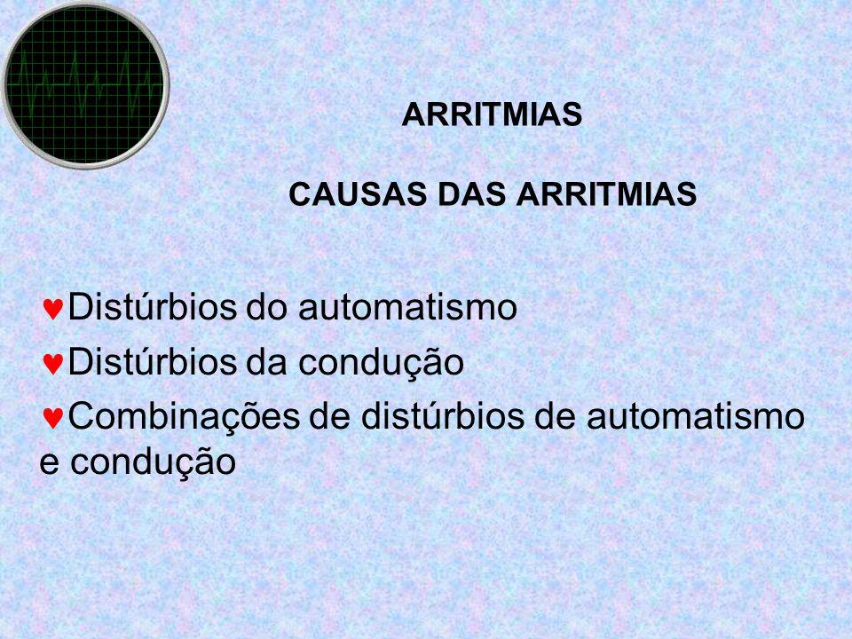ARRITMIAS CAUSAS DAS ARRITMIAS