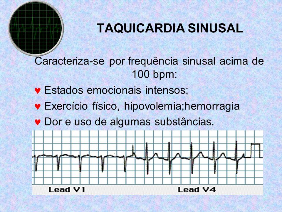 Caracteriza-se por frequência sinusal acima de 100 bpm: