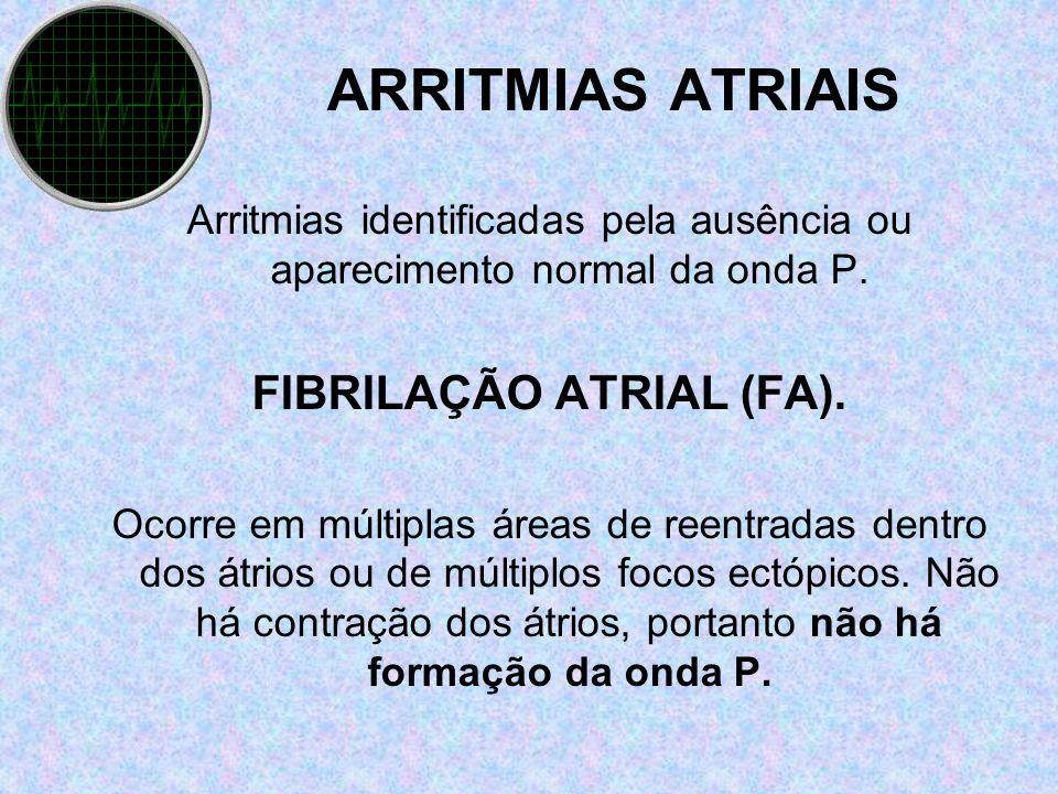 FIBRILAÇÃO ATRIAL (FA).