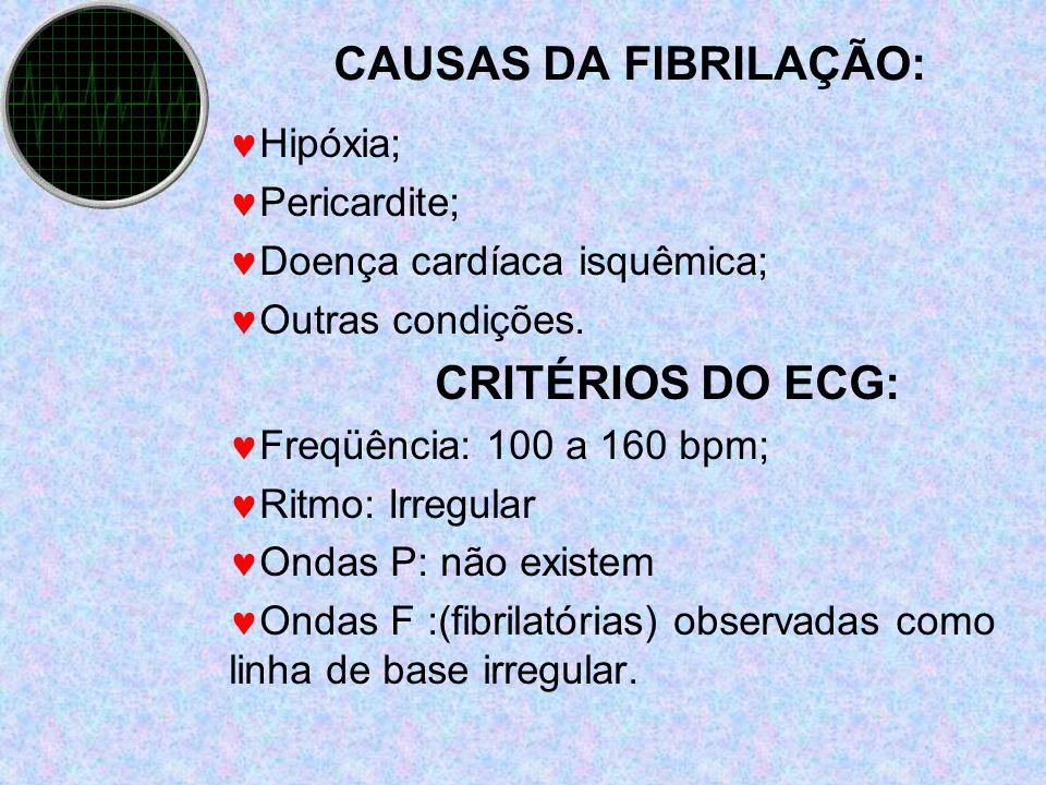 CAUSAS DA FIBRILAÇÃO: CRITÉRIOS DO ECG: Hipóxia; Pericardite;