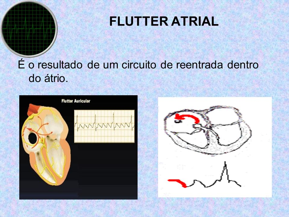 FLUTTER ATRIAL É o resultado de um circuito de reentrada dentro do átrio.