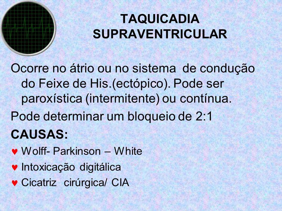 TAQUICADIA SUPRAVENTRICULAR