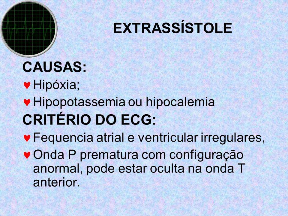 EXTRASSÍSTOLE CAUSAS: CRITÉRIO DO ECG: Hipóxia;