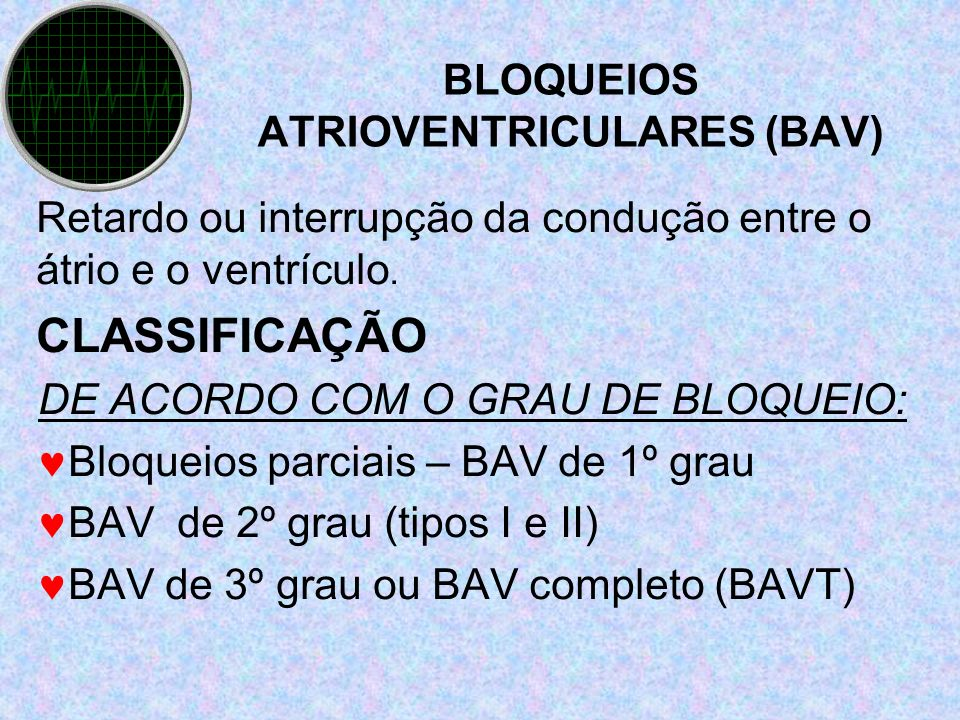BLOQUEIOS ATRIOVENTRICULARES (BAV)