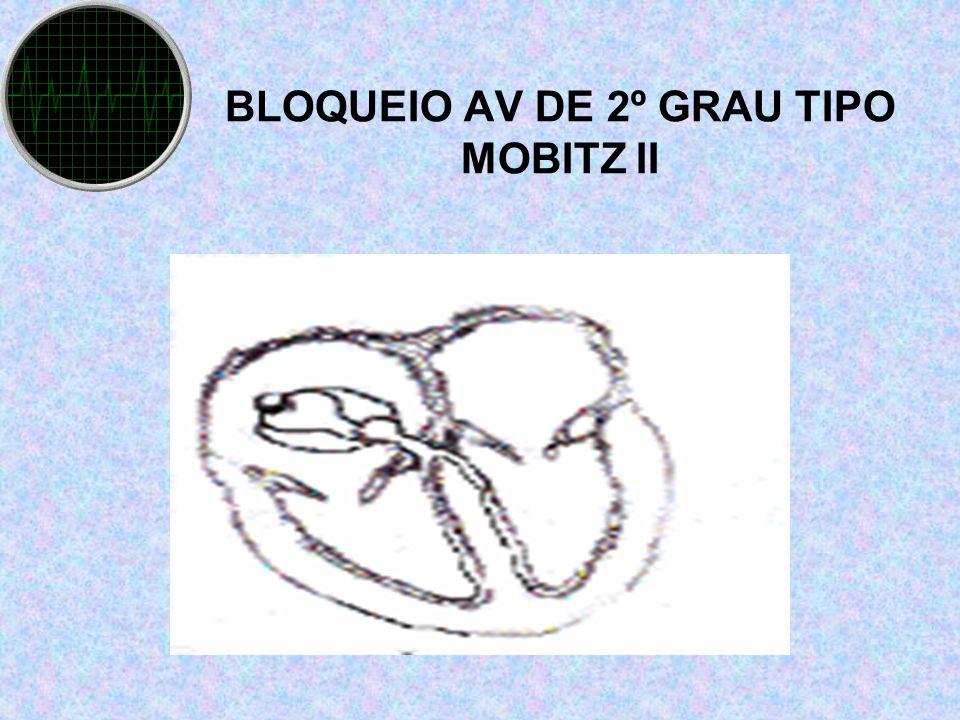 BLOQUEIO AV DE 2º GRAU TIPO MOBITZ II