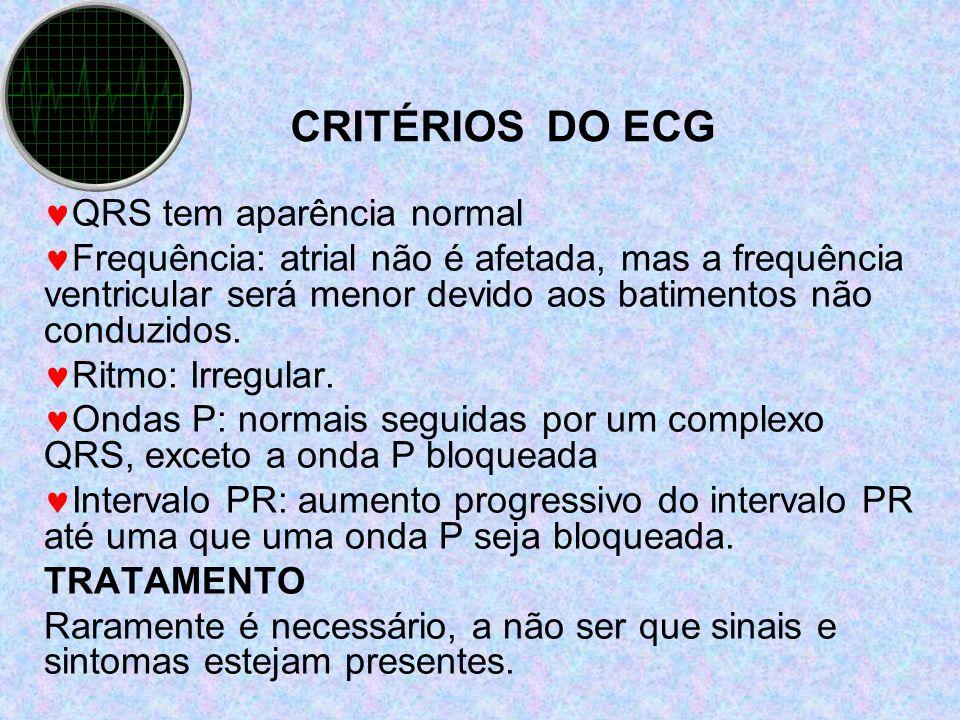 CRITÉRIOS DO ECG QRS tem aparência normal