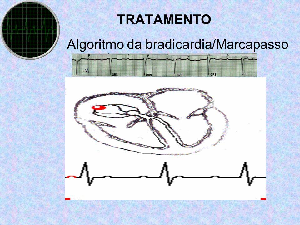 Algoritmo da bradicardia/Marcapasso