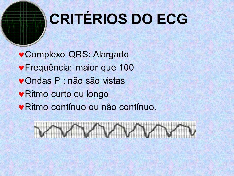 CRITÉRIOS DO ECG Complexo QRS: Alargado Frequência: maior que 100