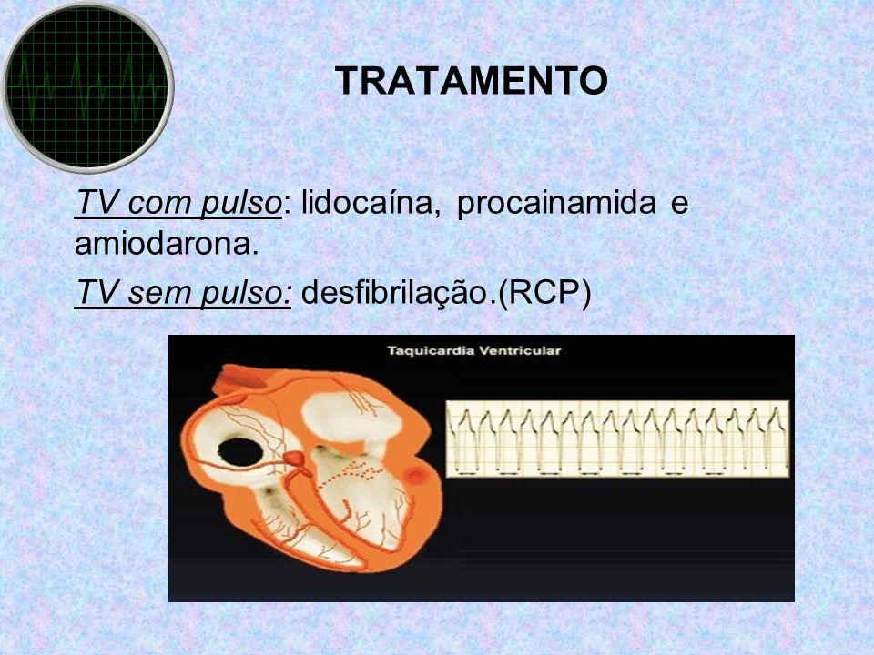 TRATAMENTO TV com pulso: lidocaína, procainamida e amiodarona.