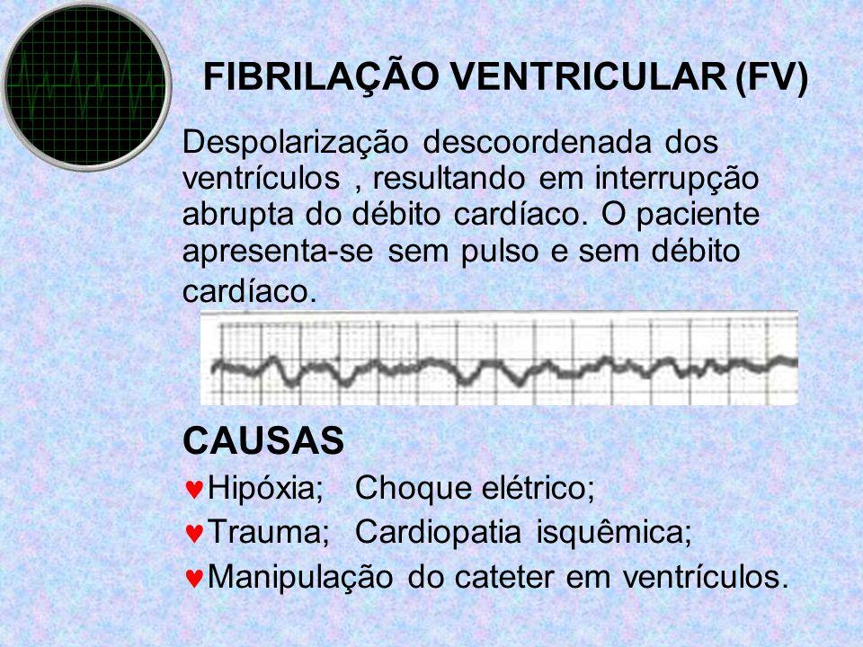 FIBRILAÇÃO VENTRICULAR (FV)