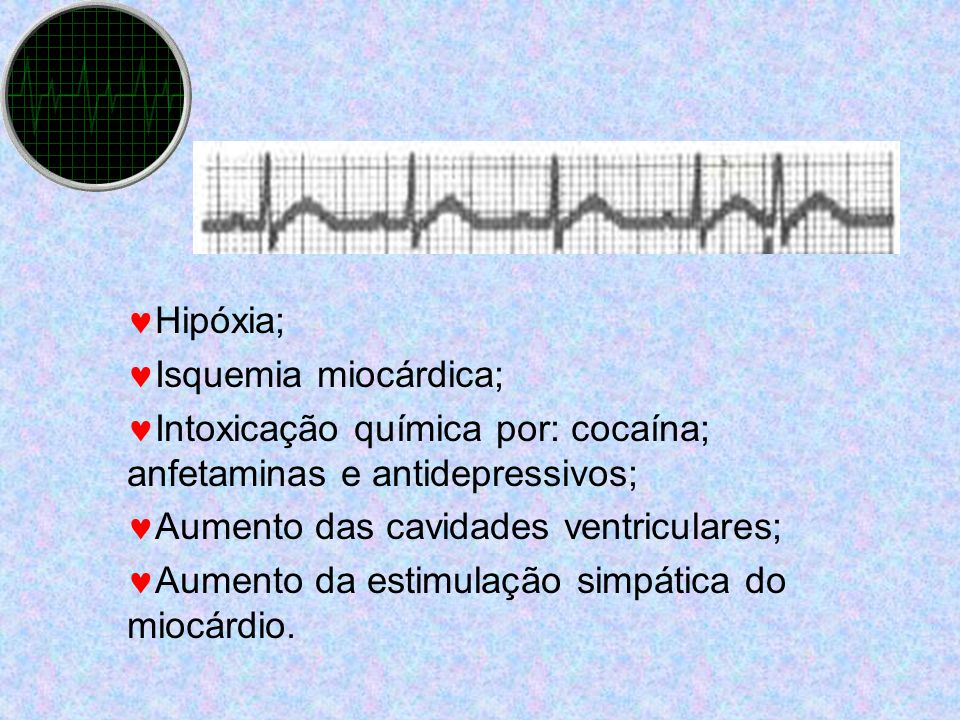 Hipóxia; Isquemia miocárdica; Intoxicação química por: cocaína; anfetaminas e antidepressivos; Aumento das cavidades ventriculares;