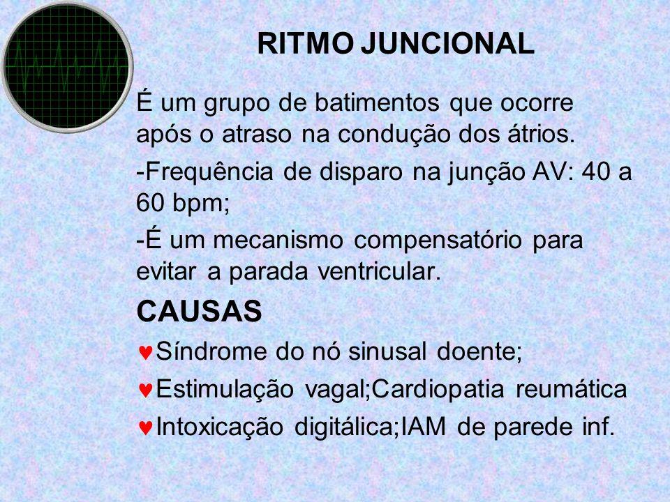 RITMO JUNCIONAL CAUSAS