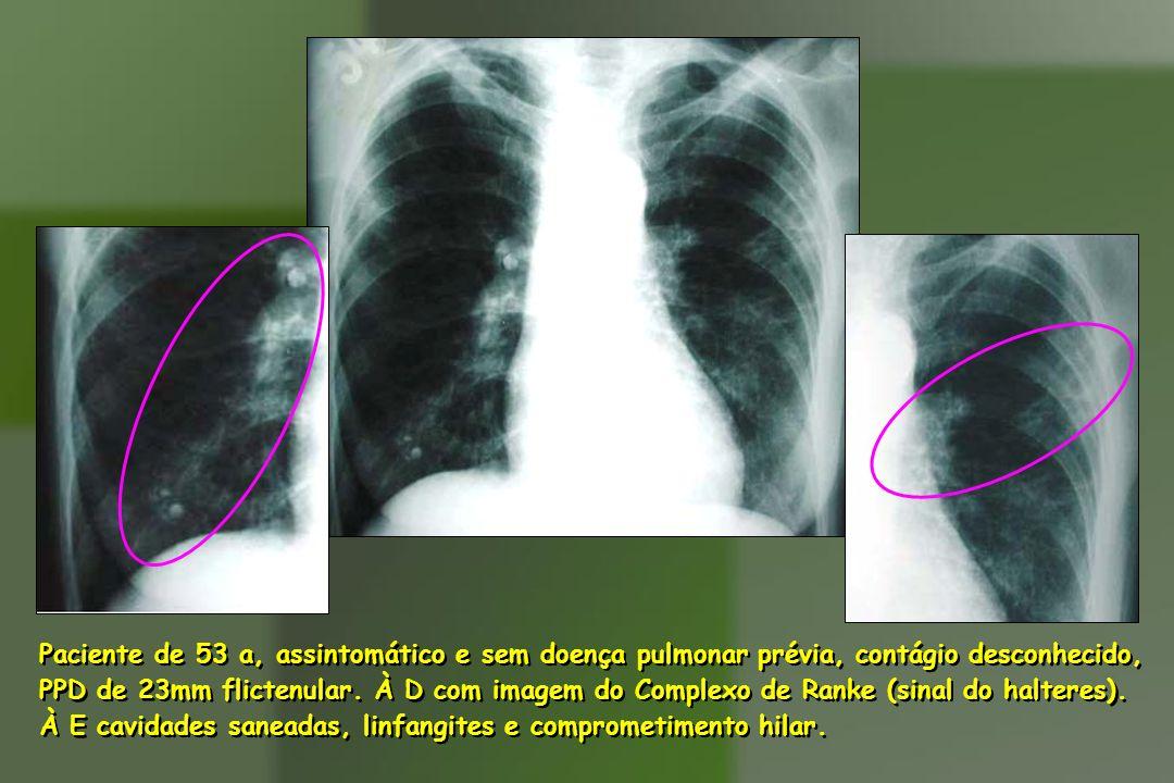 Paciente de 53 a, assintomático e sem doença pulmonar prévia, contágio desconhecido,